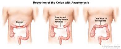 treatment colon cancer picture 3