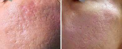 delaware acne and scar treatment md picture 17