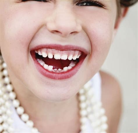 child's health loose teeth picture 15