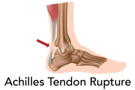 ankle joint effusion and ruptured achilles tendon picture 11