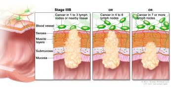 Symptoms of end stage prostate cancer spread to picture 4
