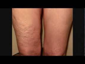 surgery for cellulite picture 5