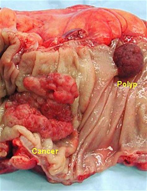 eztodecttest for colon cancer picture 3