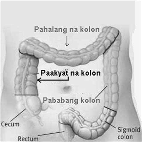 dahilan sintomas ng colon cancer picture 5