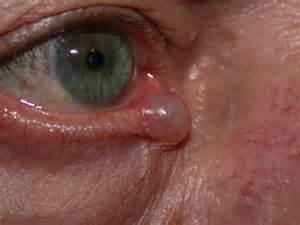 keratin cyst of eyelid picture 3