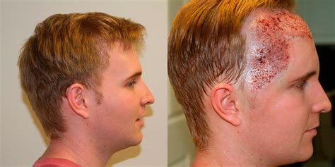 hair restore picture 2