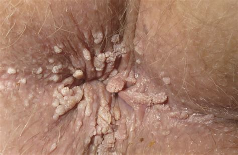 anal wart picture 5