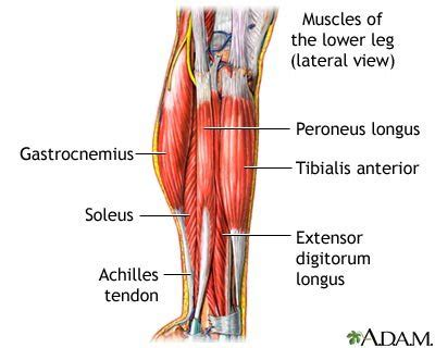 leg muscle pain picture 2