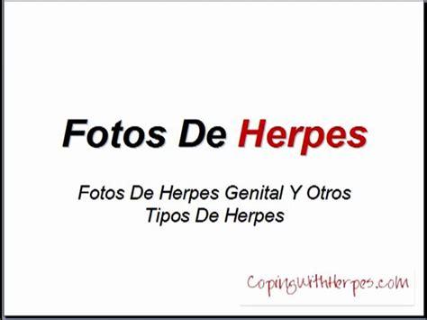 imagenes de herpes picture 3