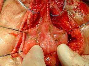 bladder repair surgery exstrophy urinary picture 1
