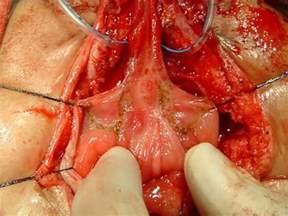 hypospadias bladder picture 1