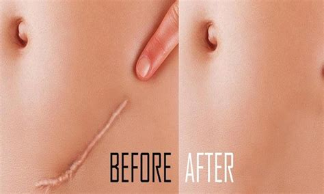 how stretch marks are formed picture 2
