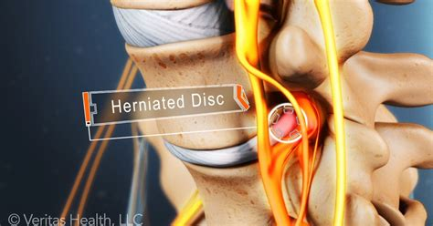 herniated disc pain relief picture 10