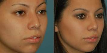 indented cleft lip revision scar picture 5
