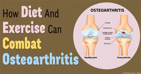 osteoarthritis recommended diet picture 6