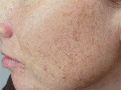 dark spots on skin picture 19