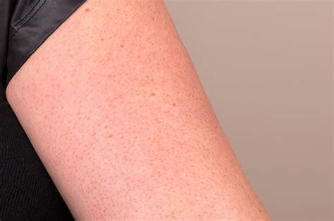 red rash with flaky skin on my arm picture 7