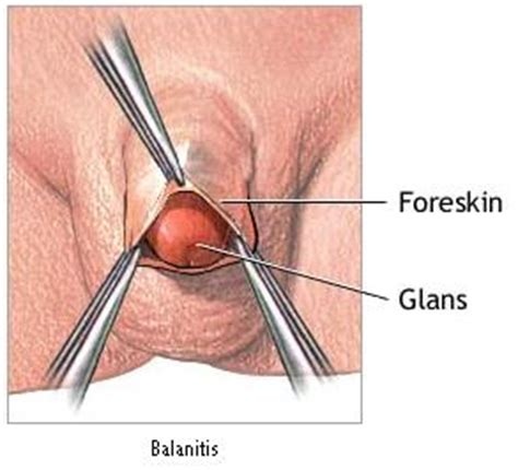 balanitis herbal remedy picture 10