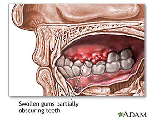 Autoimmune disease causing numbness roof of mouth swelling picture 5