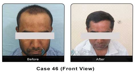 cosmetic surgery hair picture 19
