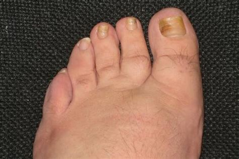 laser treatment for fungi nail ohio picture 2
