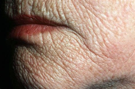 warts in liver picture 13