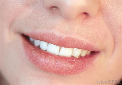 what to do for dry lips picture 10