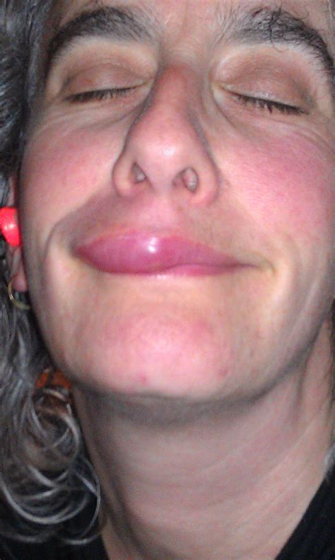 fat on lips picture 3