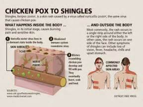 shingles virus joint pain picture 10