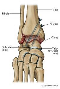 arthroscopy subtalar joint cpt coding picture 13