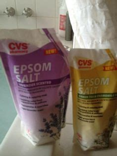 epsom salt lotion for stretch marks picture 19