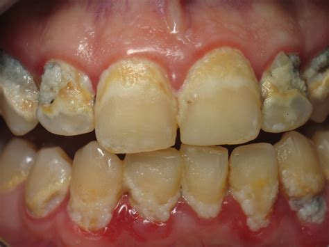 teeth dry pockets picture 10