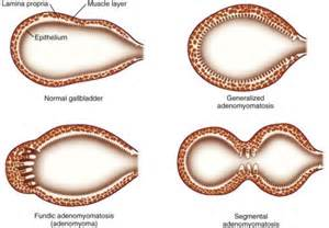 gall bladder adenomyomatosis picture 1