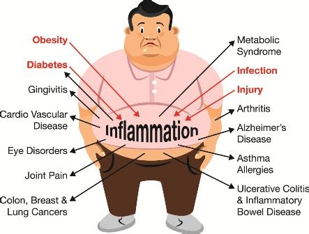 symptoms of inflammation of the colon picture 11