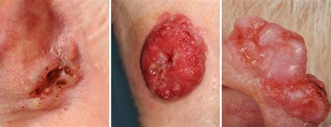 pictures of skin cancer from sun picture 8