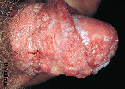 infections of the penis picture 2