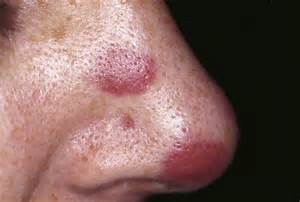 hiv rash pictures picture 2