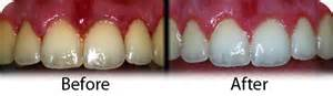 orlando teeth whitening picture 2