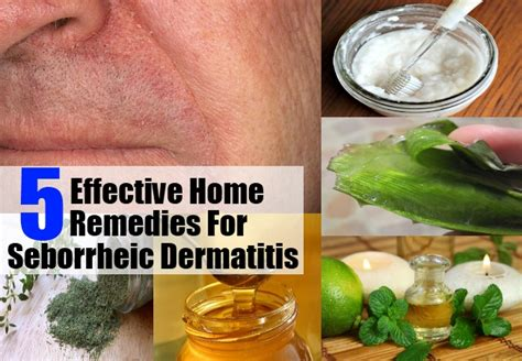 homemade acne cures picture 9