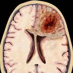 bladder peroneum picture 10