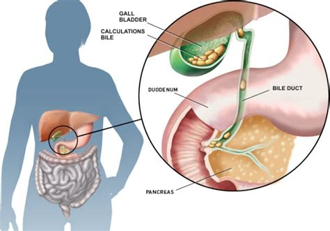gall bladder and sore ribs picture 3
