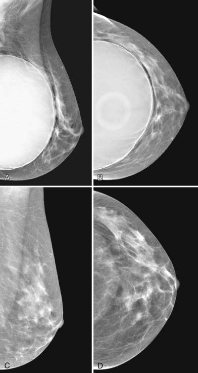 mammogram after breast augmentation picture 3
