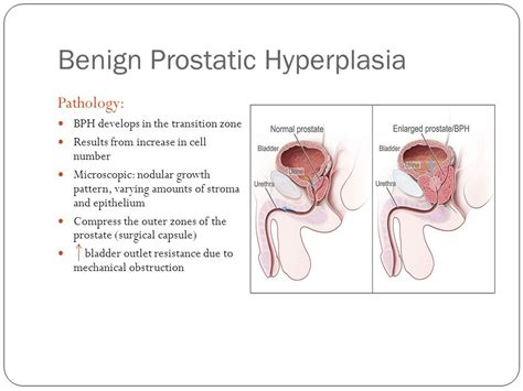definition of benign prostatic hyperplasia picture 13