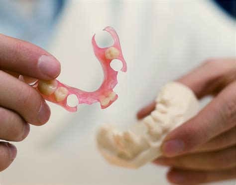 can extra h be added to flexible denture picture 4
