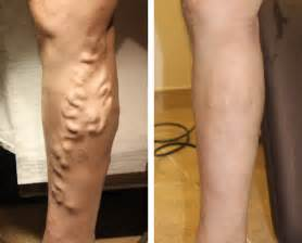 before and after stretch marks picture 14