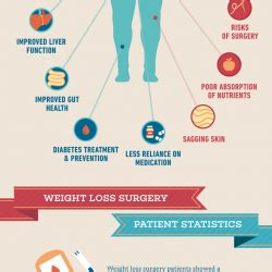 weight loss surgery pro and con picture 3