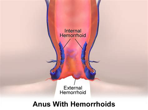 hemorrhoids pictures picture 13