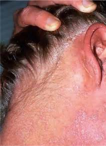 scabies on penile head picture 2
