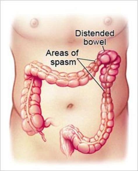 diet less frequent bowel movements picture 11