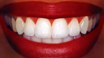 get white teeth picture 11